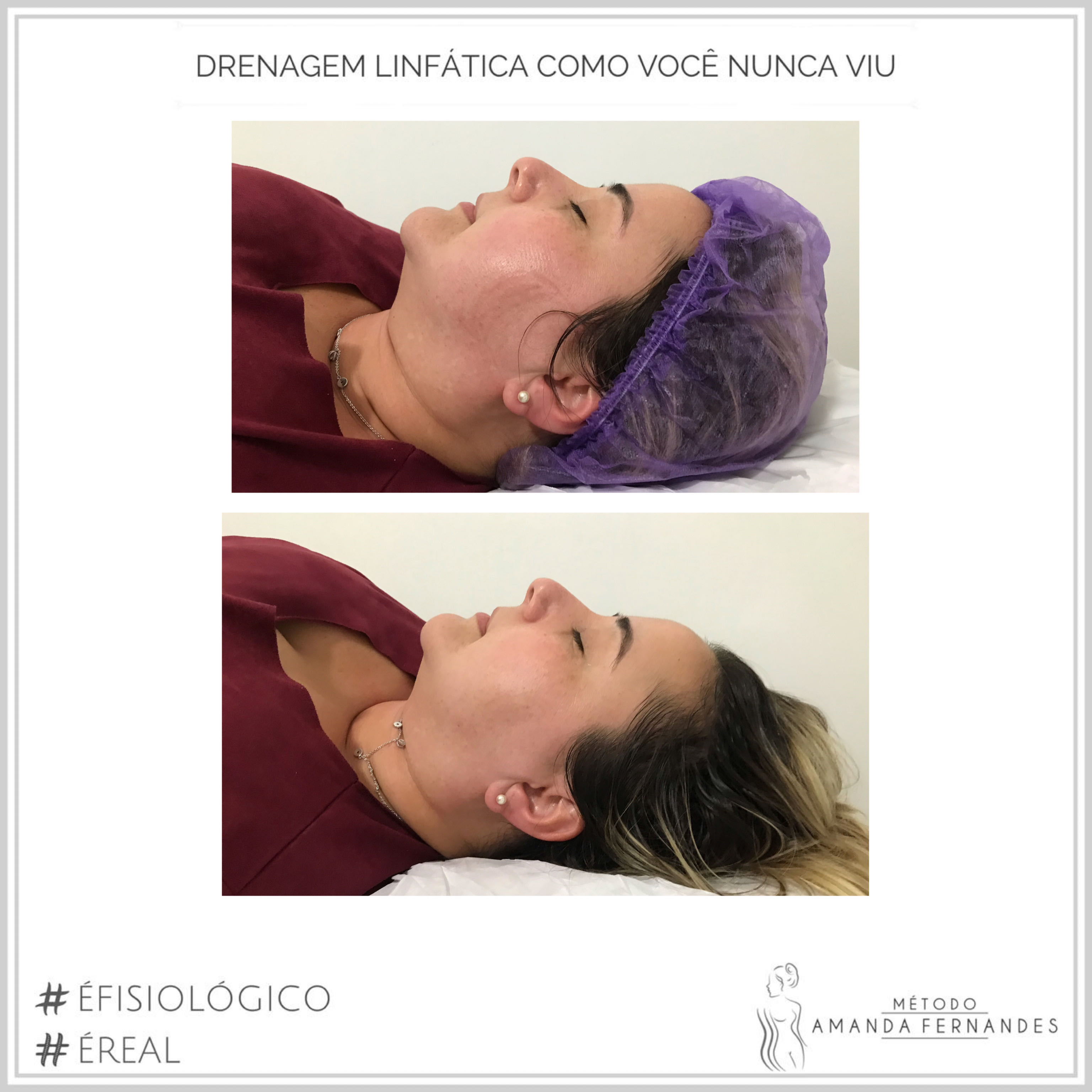 Drenagem Facial Maf