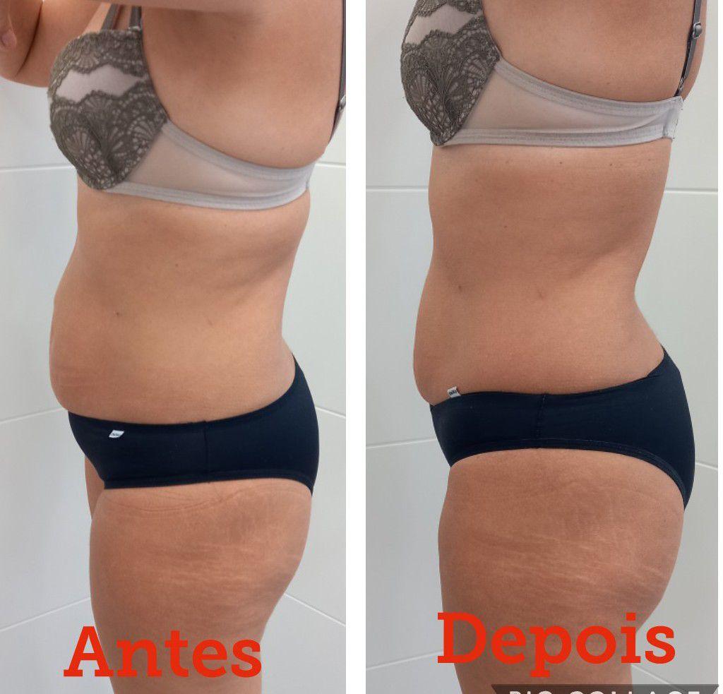 Massagem Modeladora- redução de Gordura Localizada