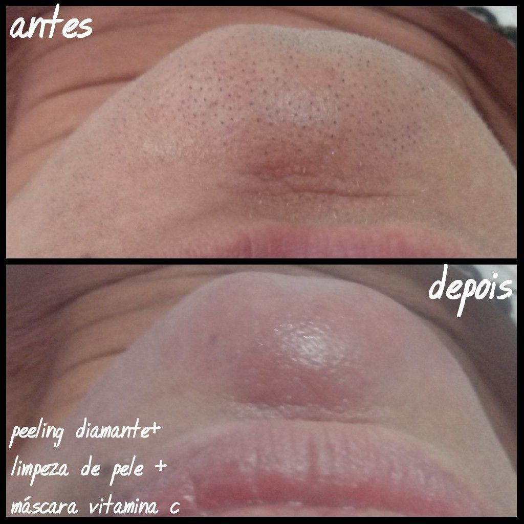 peeling diamante+limpeza de pele + vit C