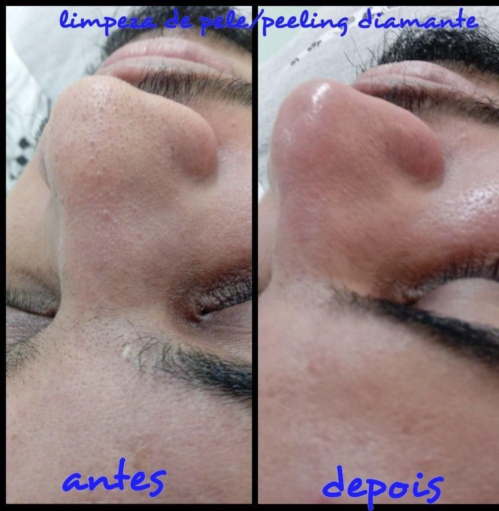 limpeza de pele +peeling diamante