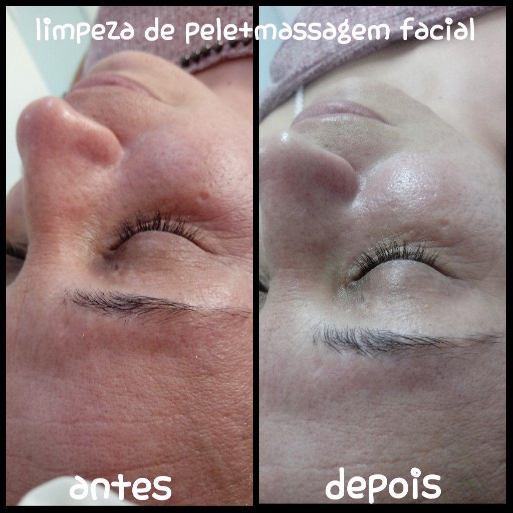 Limpeza de pele+massagem facial