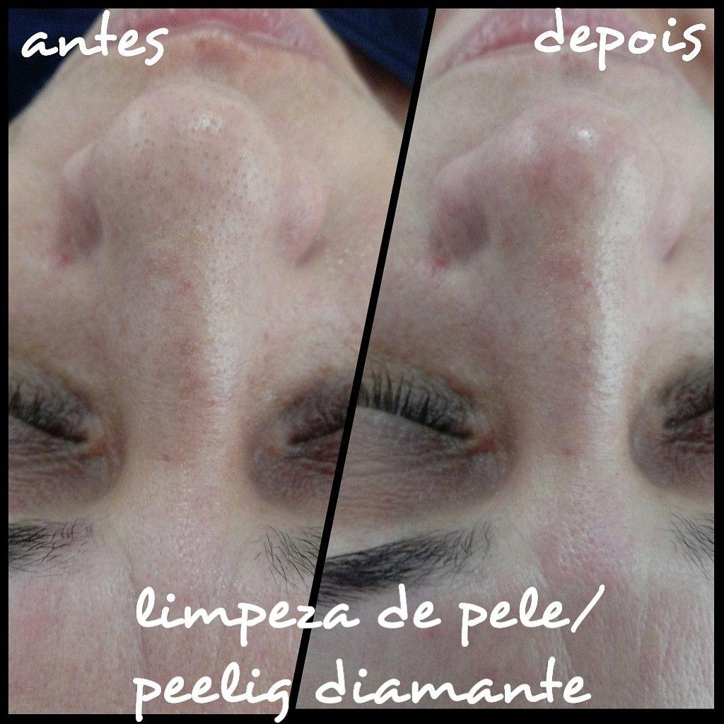limpeza de pele+ peeling diamante