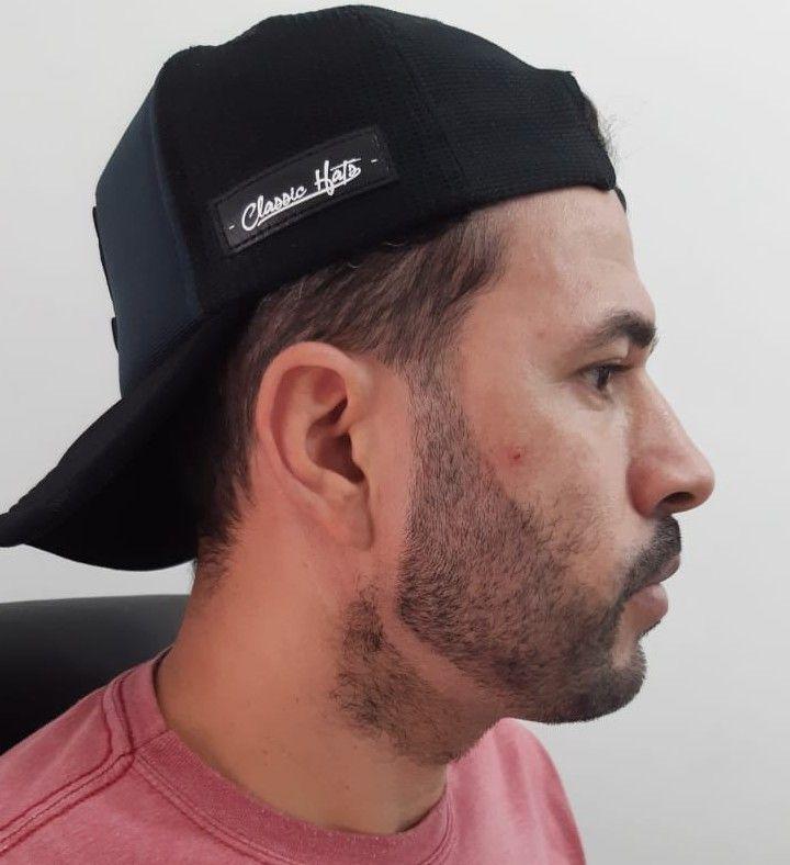 Barba e pigmentação