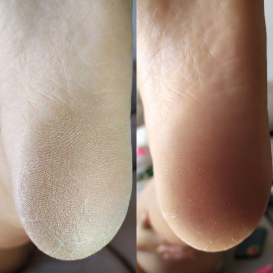 Remoção de calosidades dos pés