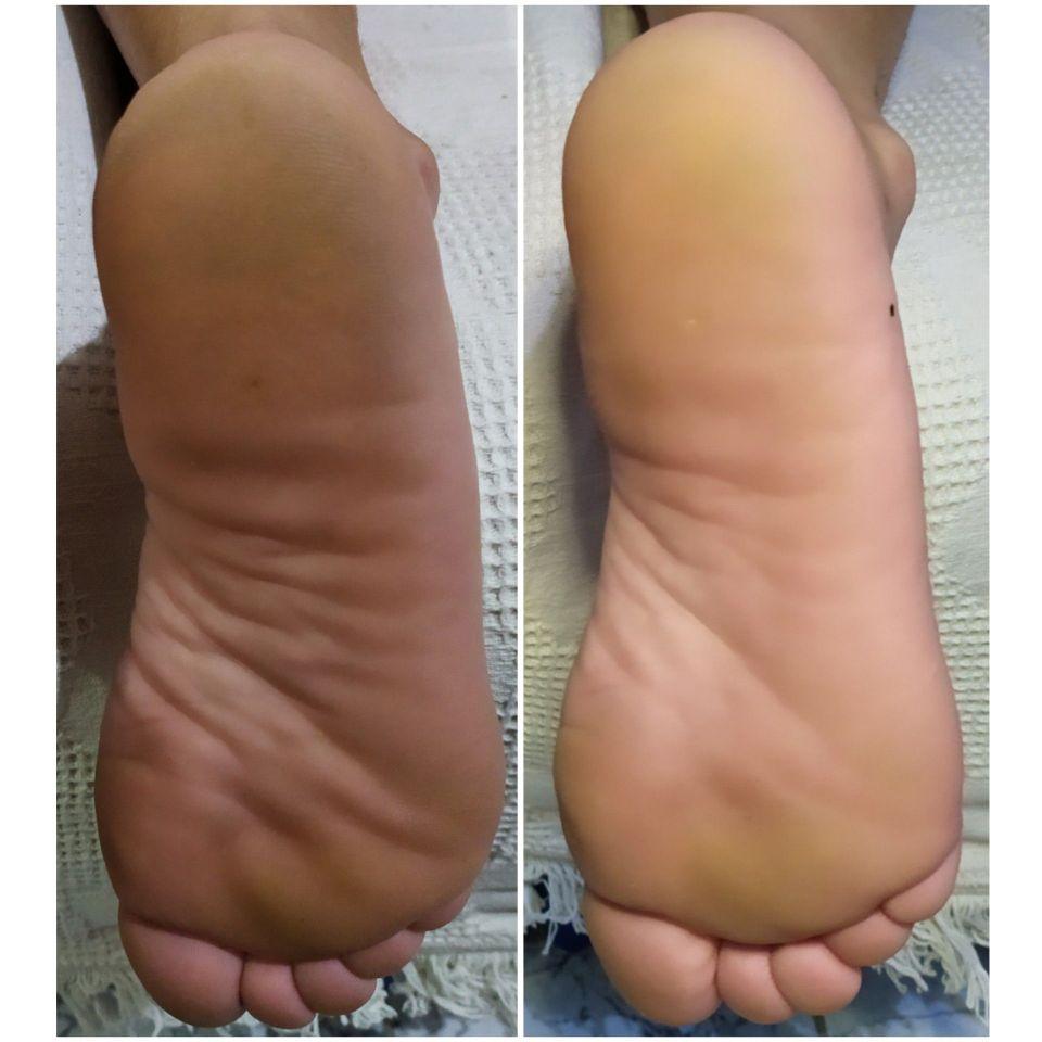 Spá dos pés (remoção de pele morta)