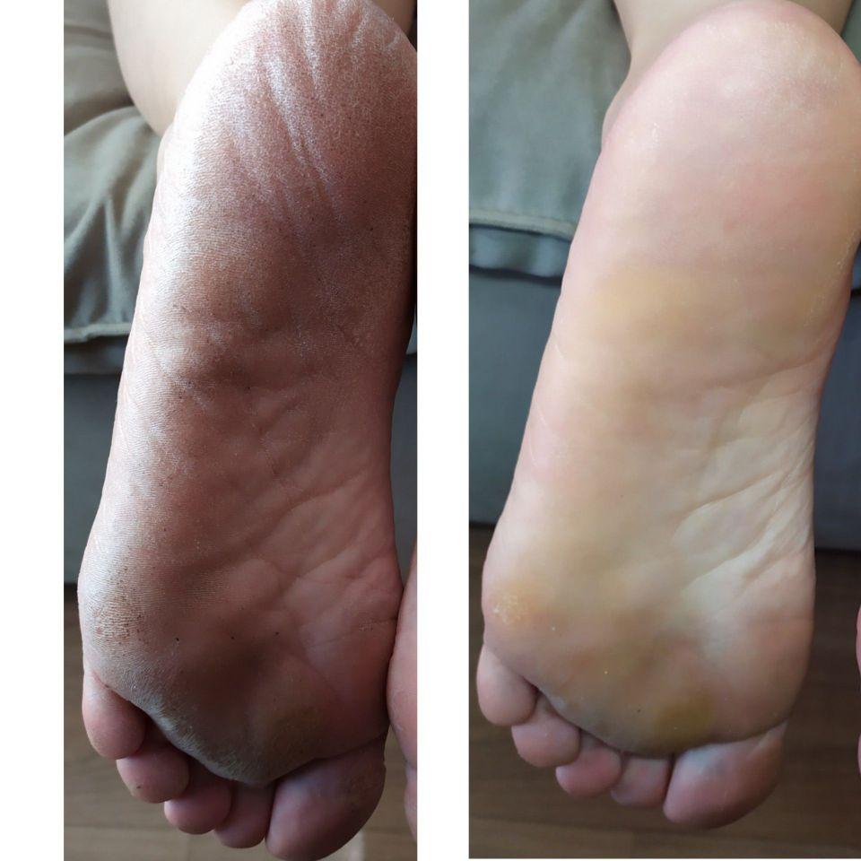 Transformação com SPÁ dos pés