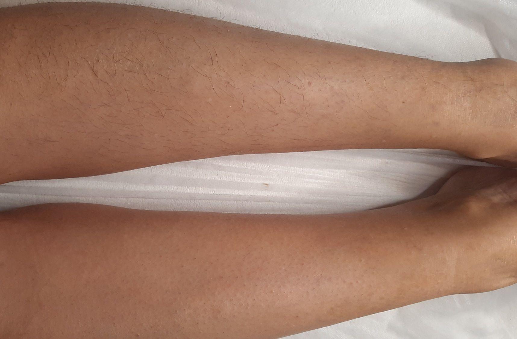 pele íntegra e lisinha por até 30 dias.