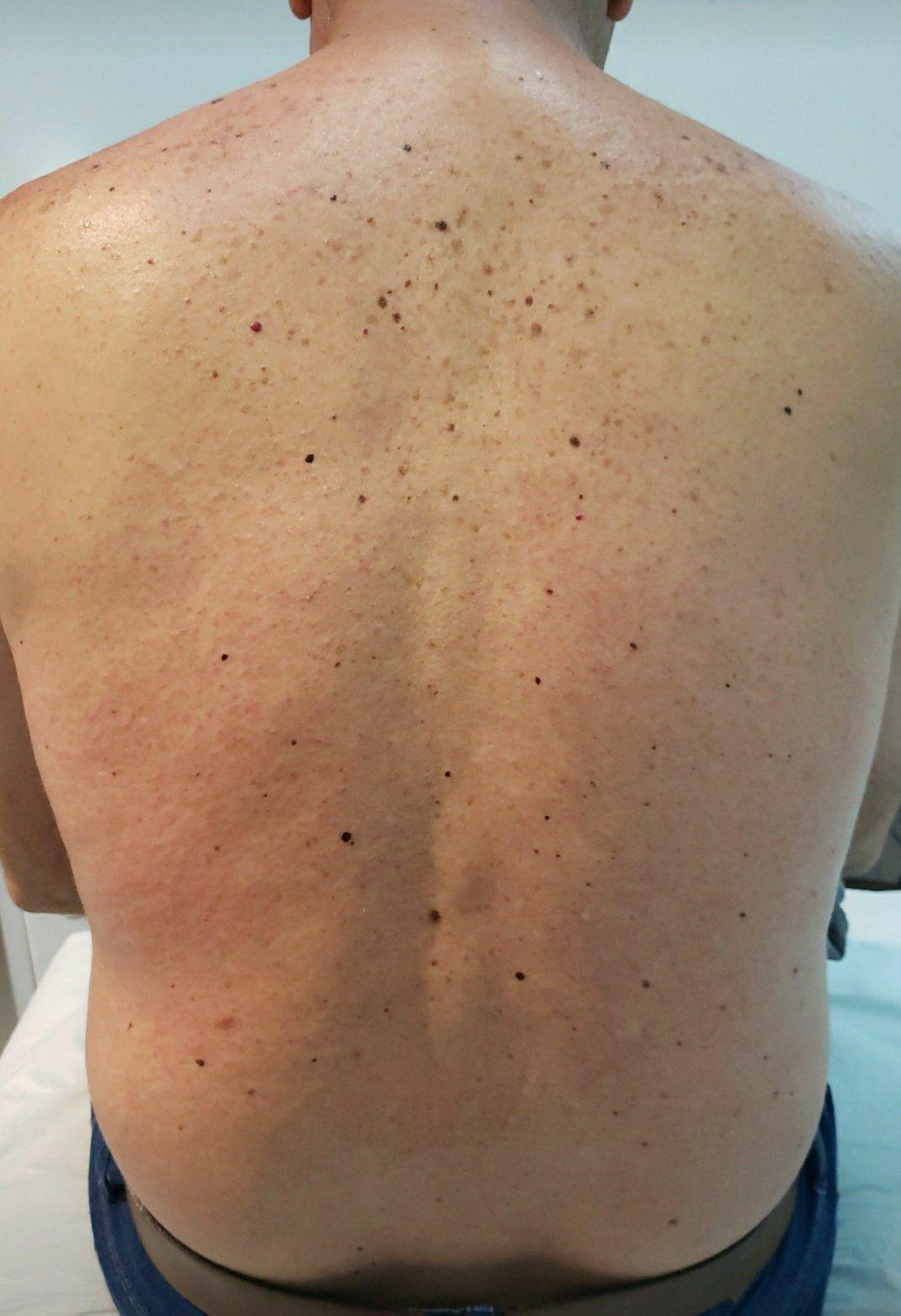 depois depilação  realizada !