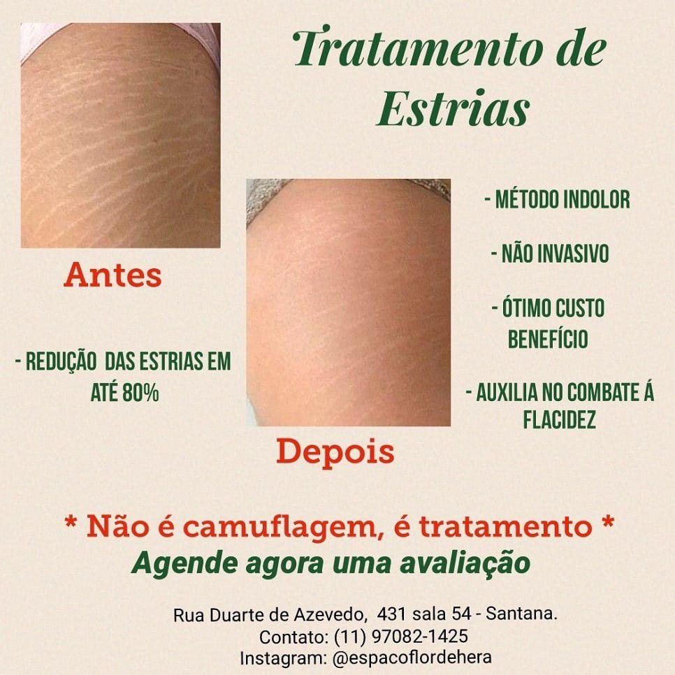 Tratamento de Estrias ( qualquer fase)